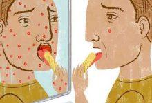 Photo of اختلال هیپوکندریا «ترس و اضطراب ناشی از بیماری که شاید هرگز به آن مبتلا نشویم»