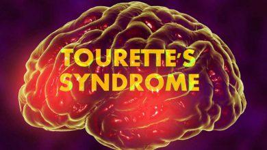 Photo of آشنایی با سندرم توره «Tourette Syndrome»